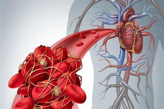 10 shenja që tregojnë se mund të keni mpiksje gjaku